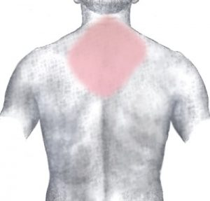 back pain between shoulder blades causes symptoms and